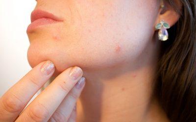 prípravok na akné